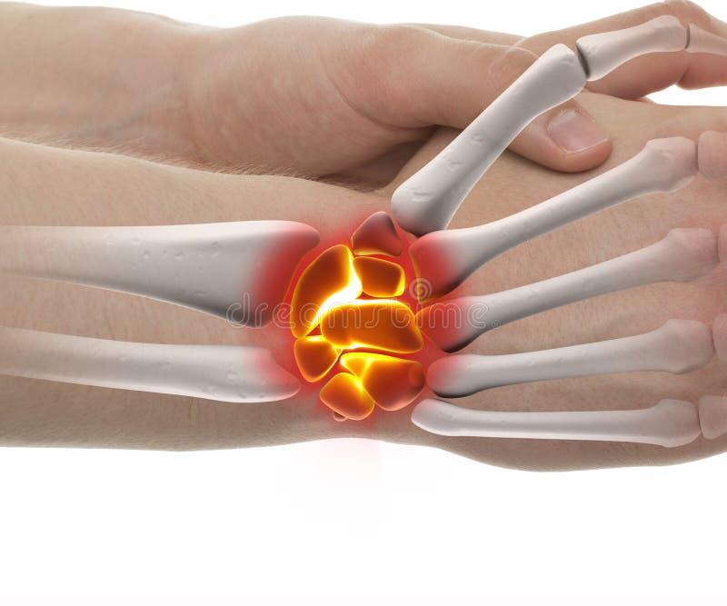 Handgelenk-Bruch - Atelieraufnahme mit der Illustration 3D lokalisiert auf wh stock abbildung