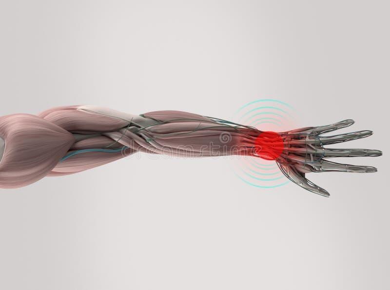 Handleden för anatomimodellvisningen smärtar vektor illustrationer