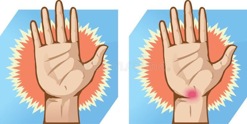 Handpijn stock illustratie