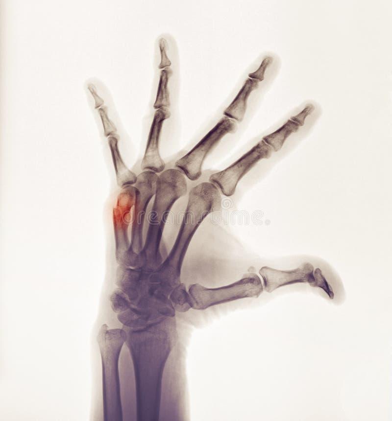 Handröntgenstrahl, der den Bruch eines Boxers zeigt lizenzfreie stockfotografie