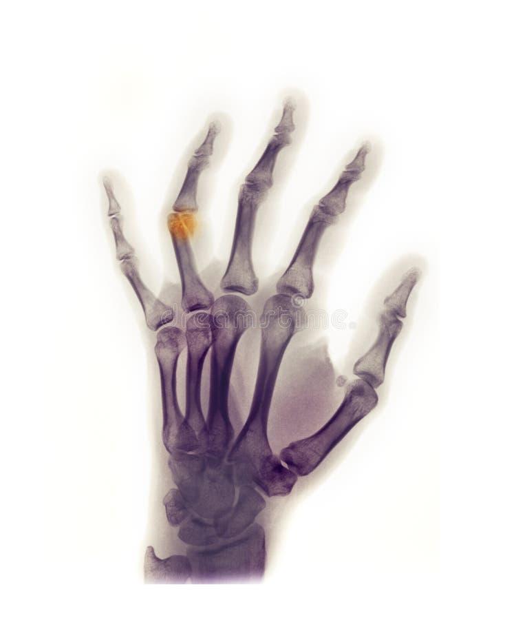 Handröntgenstrahl, der einen Bruch zeigt stockfotografie