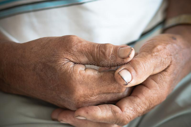 Hands Asian poor elderly grandfather man that  have dry black and Dirty nails, World Kindness Day concept and Adult day care. very. Old senior woman hands stock photos