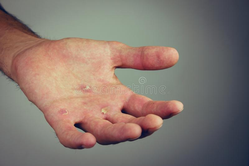 Hands with blister and callus royalty free stock photography