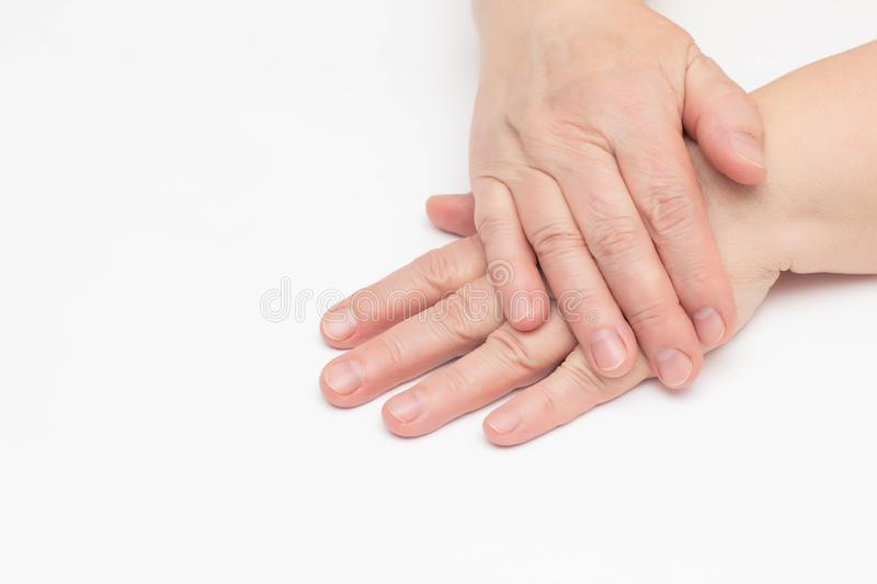 The hands of an elderly woman on a white background which has skin problems, dry and cracked skin on the hands, wrinkles, close-up stock photo