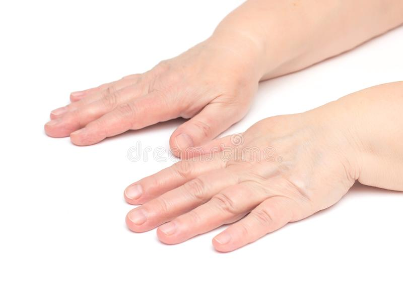 The hands of an elderly woman on a white background which has skin problems, irritation and redness on the skin, hypoallergenic royalty free stock image