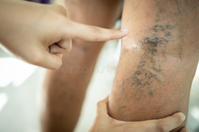 Hands of female doctor is showing varicose vein in the leg of asian senior man,vascular disease,spider veins,varicose veins,. Superficial veins problems,elderly stock photos