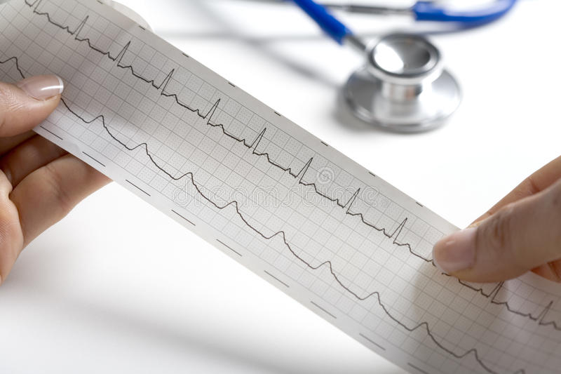 Hands holding a regular ecg. With a stethoscope in the background stock photos