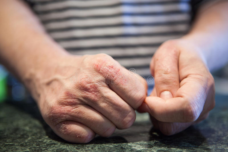 Hands with psoriasis or eczema sickness. Health problems with skin. Medical concept stock photo