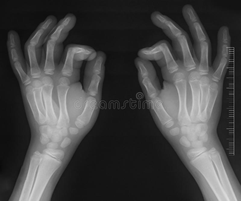 Hands x-ray stock images