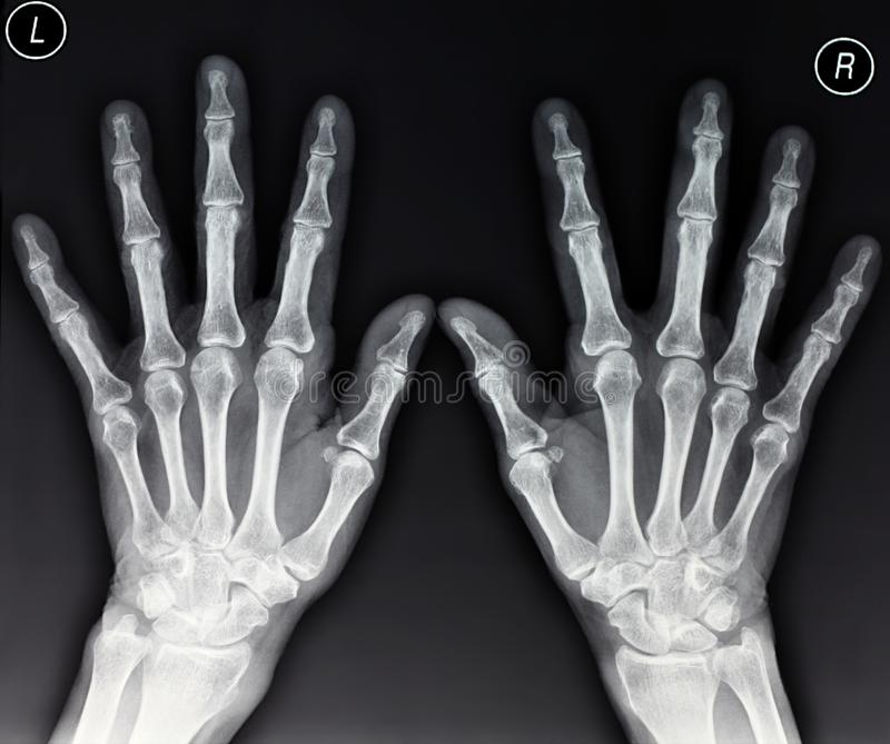 Download Hands X-ray Stock Photography - Image: 19475942