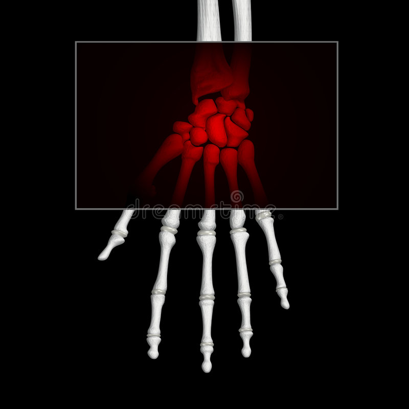 Handschmerz vektor abbildung