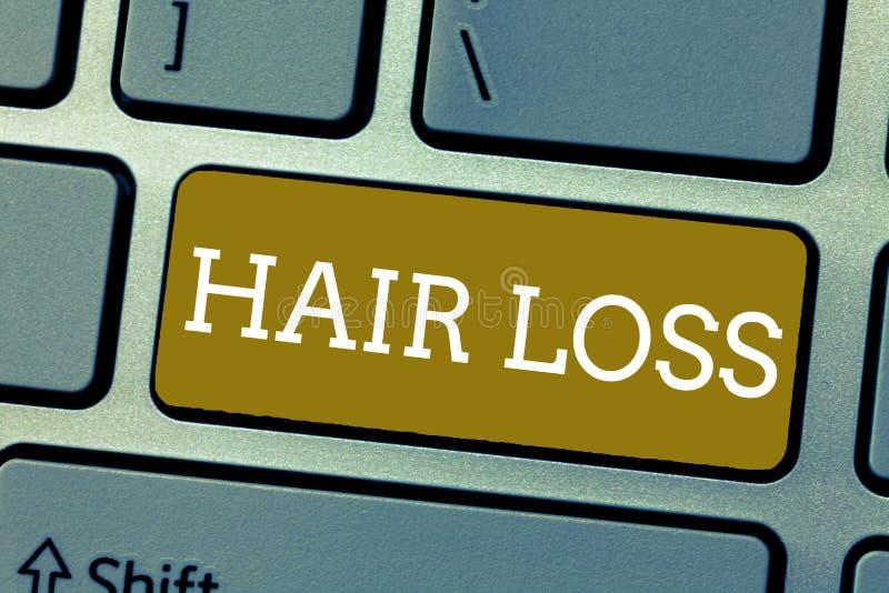Handschriftstext Haarausfall Konzept, das Verlust von huanalysis Haar vom Kopf oder von irgendeinem Körperteil kahl werdend bedeu lizenzfreie stockbilder