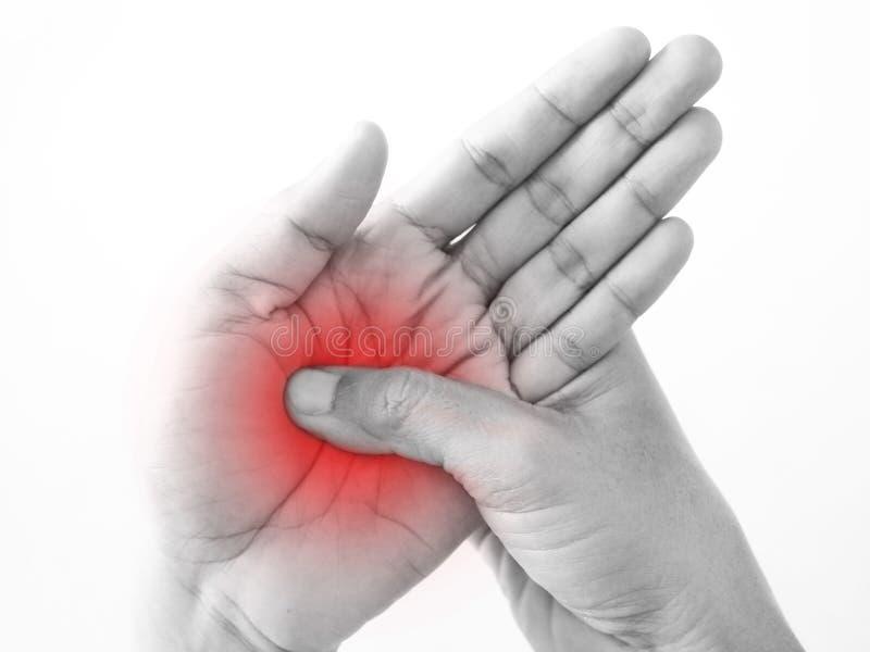 Handskadan gömma i handflatan från perifer neuropathy för arbete arkivbilder