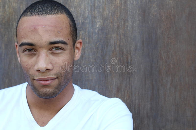 Handsome ethnic young male with facial acne with copy space on the right stock photos