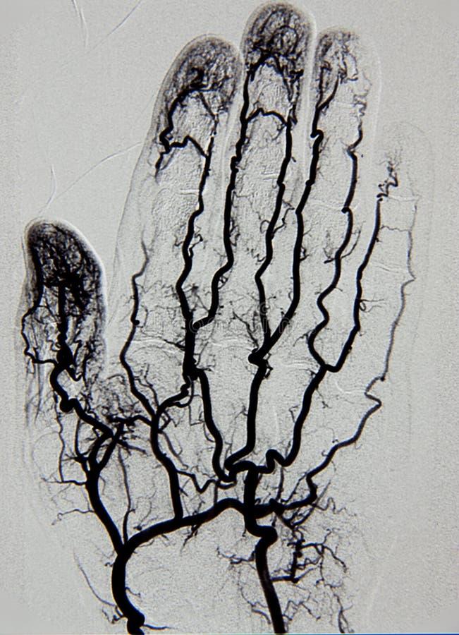 Handvasographie, Arteriographie lizenzfreies stockfoto