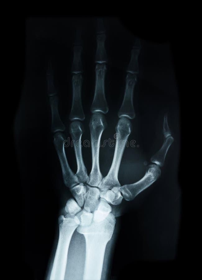 Handwortelbeenderen Menselijke Röntgenstraal stock afbeelding