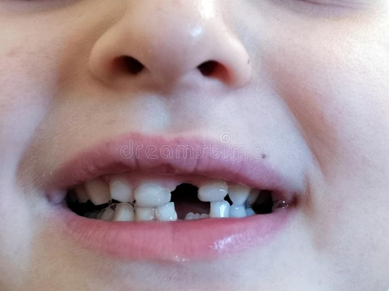 Child proud of missing front tooth. Happy boy proud of missing front tooth. Milk royalty free stock image