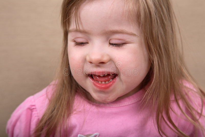 Happy Down Syndrome Girl royalty free stock photos