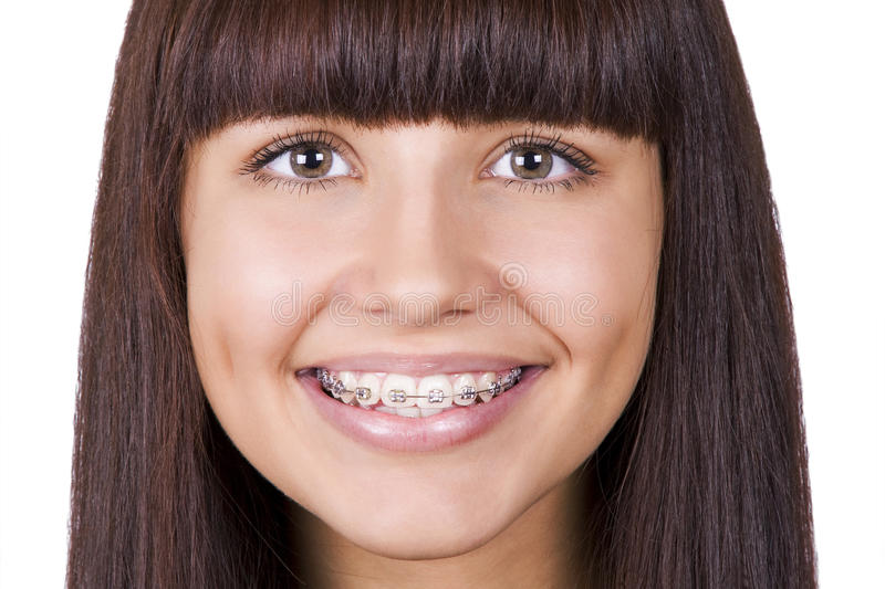 Happy teen with braces. royalty free stock images