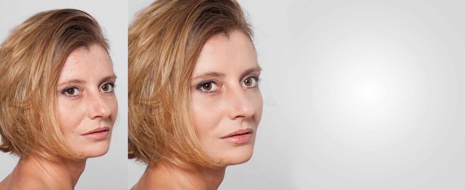 Happy woman after beauty treatment - before/after shots - skin care, anti-aging procedures, rejuvenation, lifting, tightening of. Facial skin royalty free stock photo
