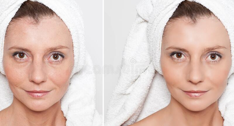 Happy woman after beauty treatment - before/after shots - skin care, anti-aging procedures, rejuvenation, lifting, tightening of. Facial skin stock photography
