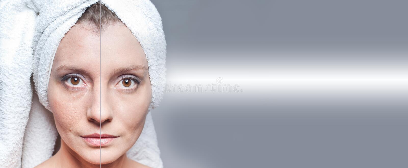 Happy woman after beauty treatment - before/after shots - skin care, anti-aging procedures, rejuvenation, lifting, tightening of. Facial skin royalty free stock images