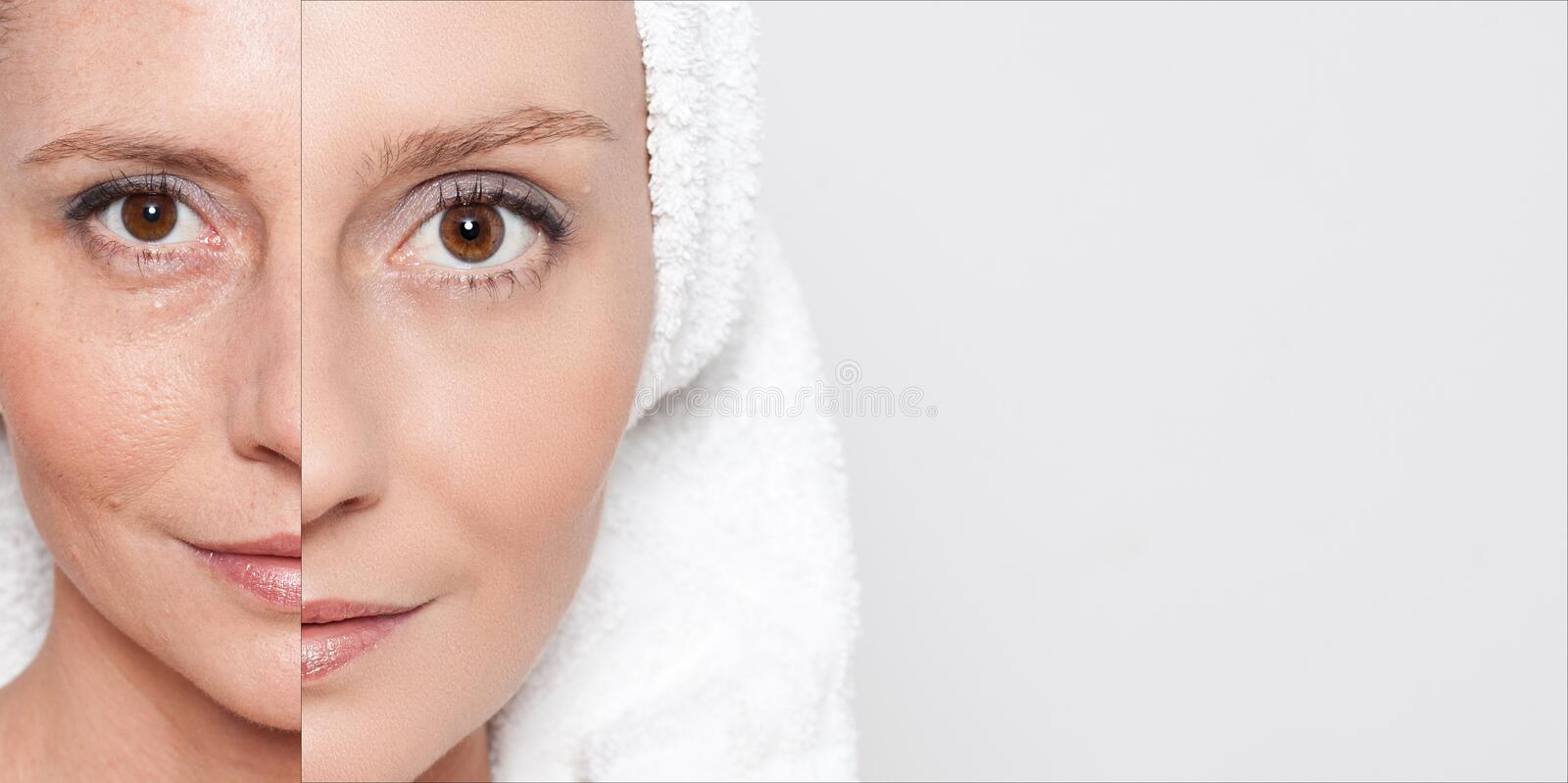 Happy woman after beauty treatment - before/after shots - skin care, anti-aging procedures, rejuvenation, lifting, tightening of. Facial skin royalty free stock photos