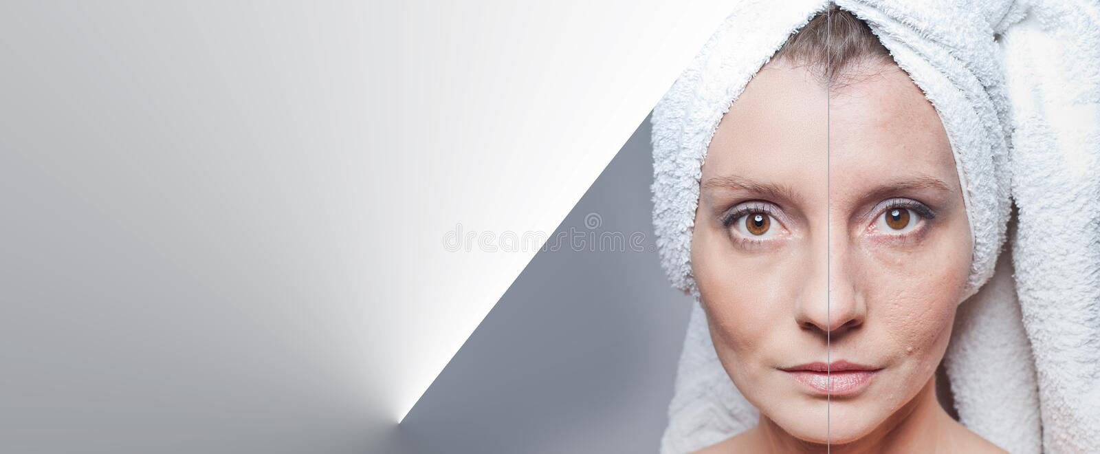Happy woman after beauty treatment - before/after shots - skin care, anti-aging procedures, rejuvenation, lifting, tightening of. Facial skin stock images
