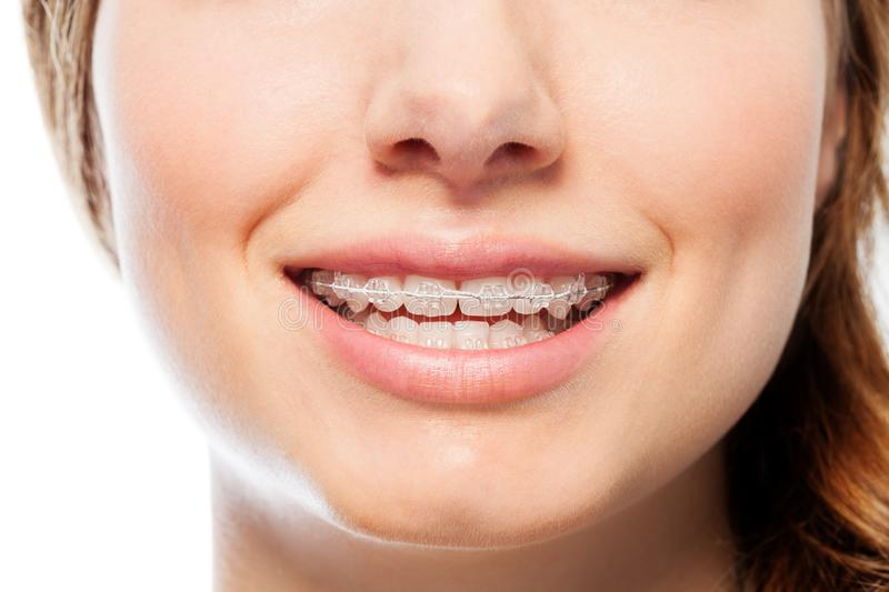 Happy woman`s smile with orthodontic clear braces stock photos