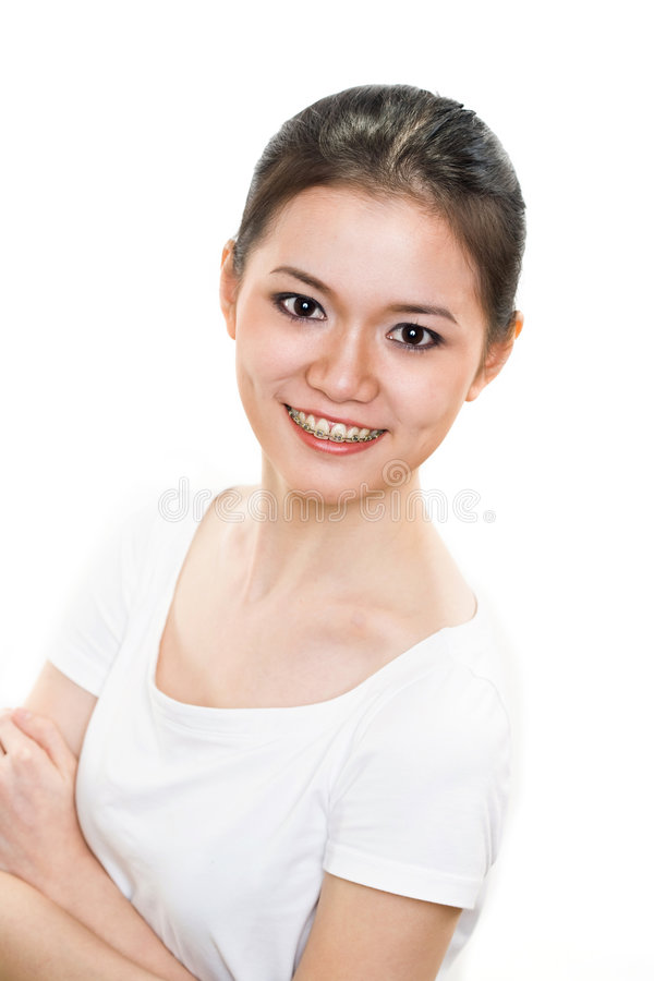 Happy Young woman with braces stock photos