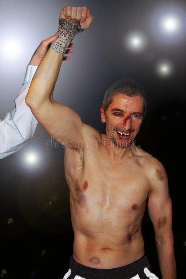 A hard victory. A boxer in a bad state, a hoarse nose, bitten ear, broken teeth, bruises height the body, raises his fist quite happy of his victory stock image