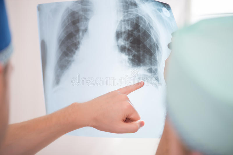 Hard work of doctors stock images