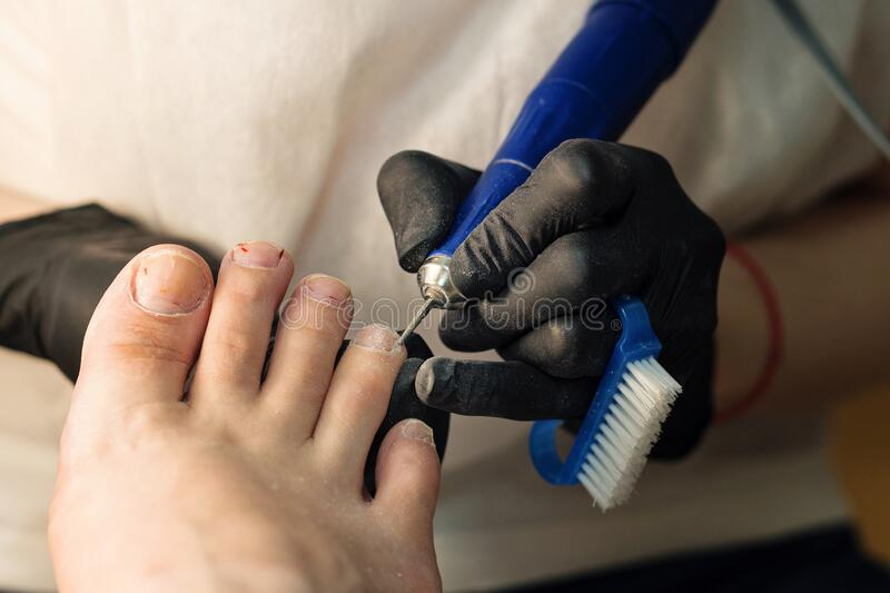 Hardware pedicure. Chiropody. Foot care. stock photos