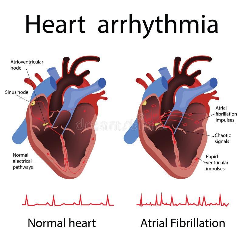 Hartanatomie en types van hartkwaal vectorillustratie royalty-vrije illustratie
