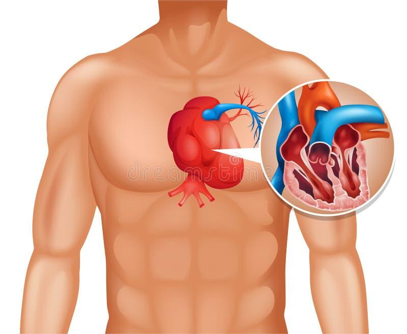 Hartkanker in mens stock illustratie