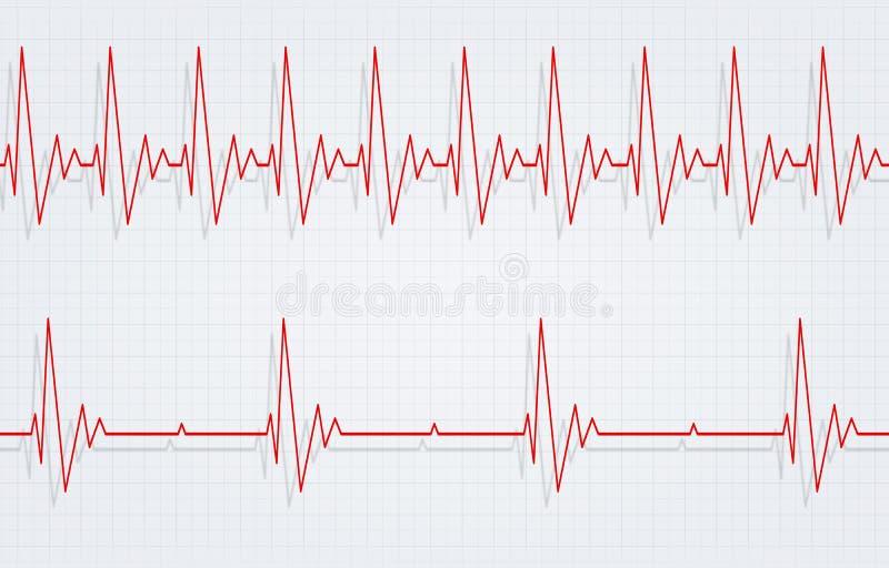 Hartkloppingen en Bradycardie stock illustratie