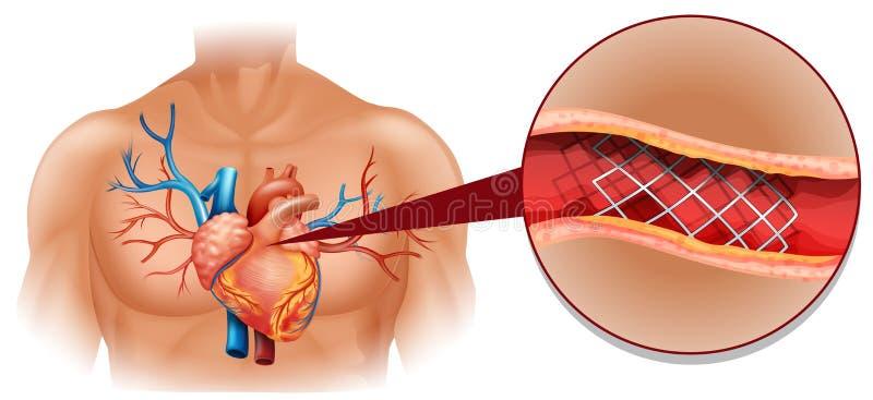 Hartkwaaldiagram in mens vector illustratie