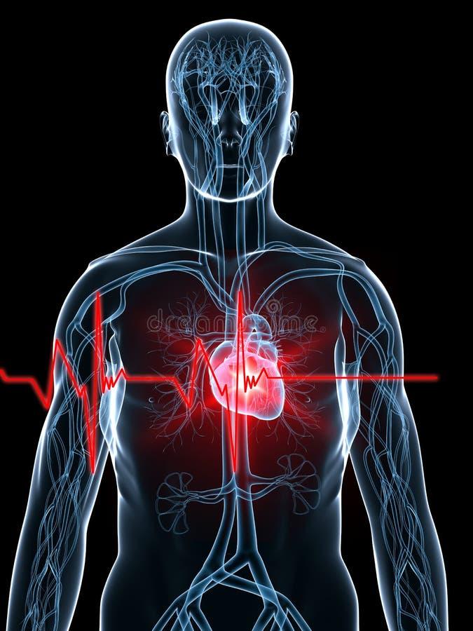 Hartslag/heartattack stock illustratie