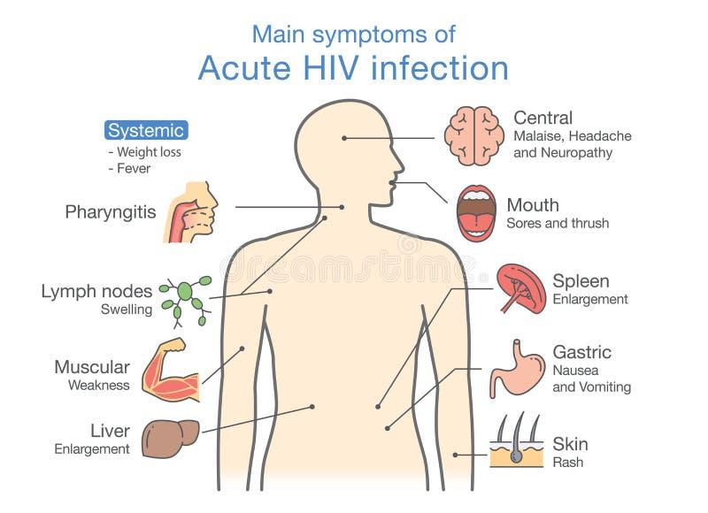 Hauptsymptom der akuten HIV-Infektion vektor abbildung