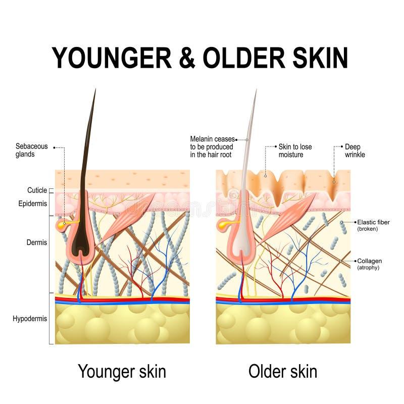 Hautänderungen oder Alternhaut stock abbildung