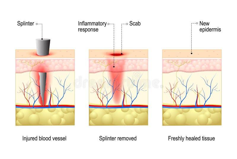 Haut mit Splitter und Wundheilung lizenzfreie abbildung