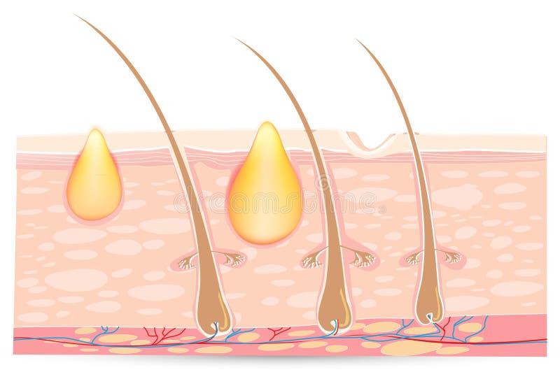 Hautanatomie mit Akne stock abbildung