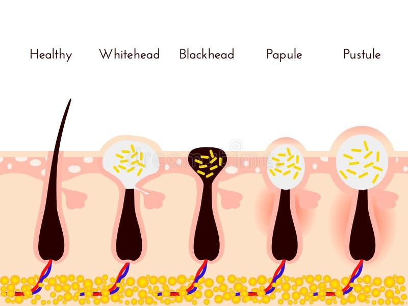 Hautprobleme Arten von Aknepickeln Gesichtsbehandlungen und Problemvektorillustration Whiteheads und Mitesser lizenzfreie abbildung