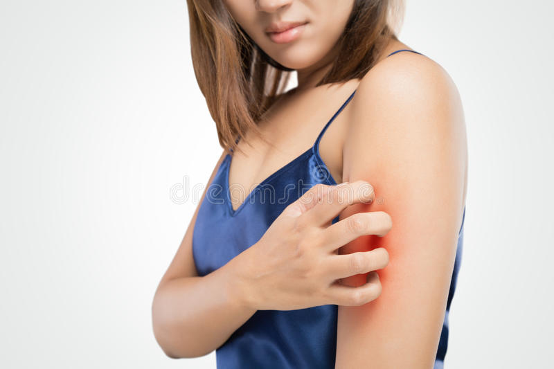 Have a itching. People scratch the itch with hand, Upper arm, itching, Healthcare And Medicine, Beautiful girl woman with skin problem concept royalty free stock photography