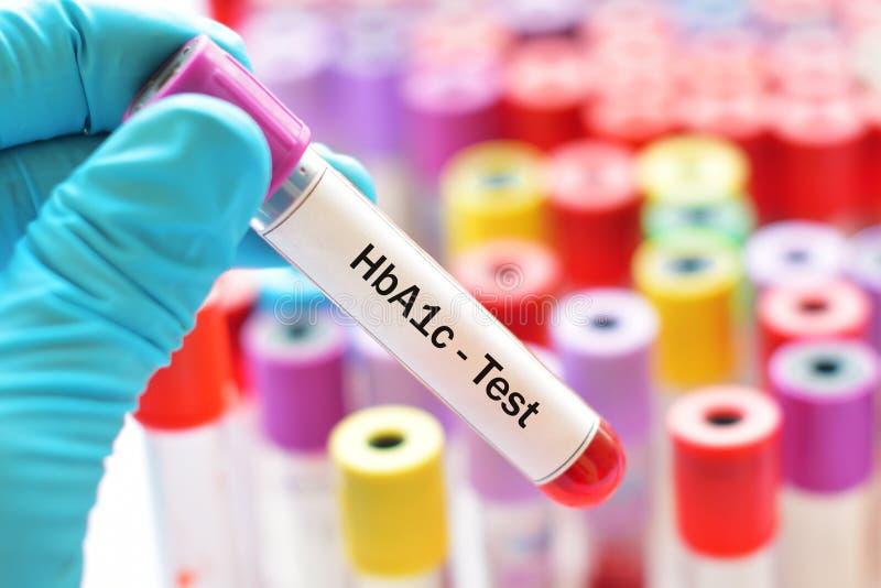 HbA1c-Test stockfotografie