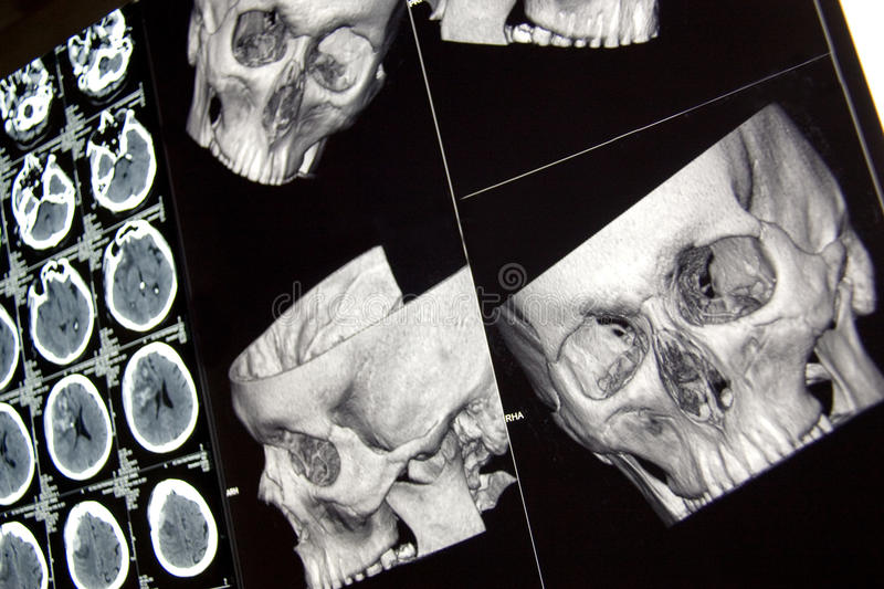 Traumatic brain injury, head bones and brain, CT stock image