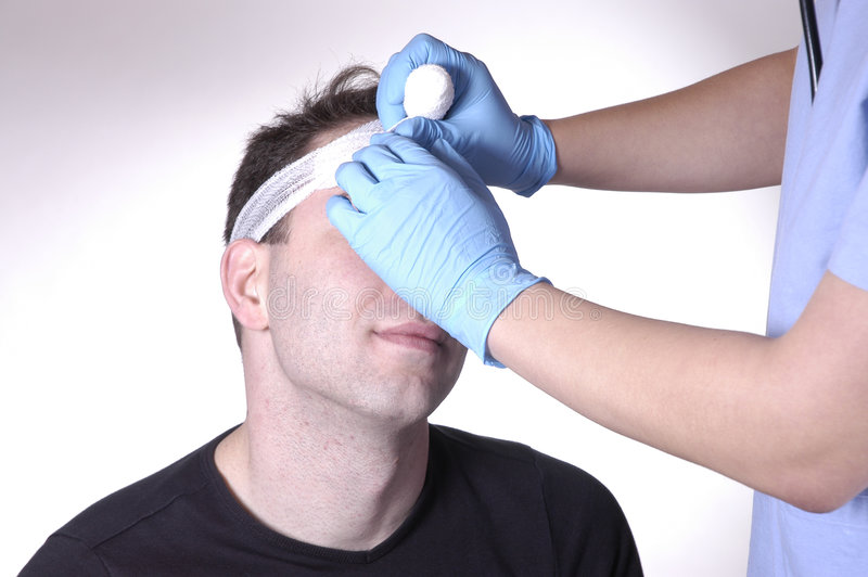Head injury royalty free stock photography