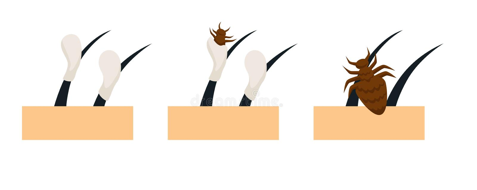 Head lice lifecycle on hair and scalp stock illustration