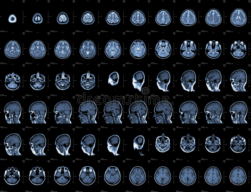 Head MRI. Brain and head MRI or CT images royalty free stock image
