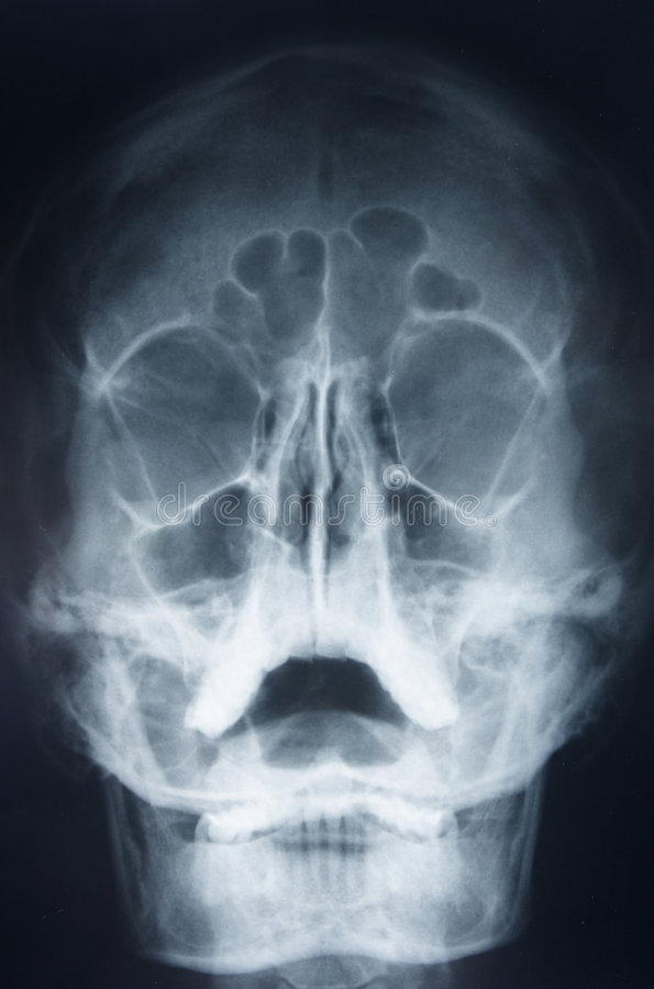Head x-ray stock image